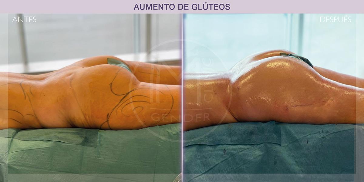 aumento de glúteos