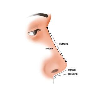 Ilustración sobre las diferencias entre la nariz masculina y la nariz femenina